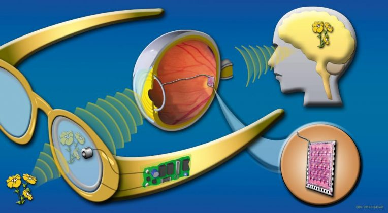Diagram of one type of bionic eye